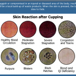 Cupping skin reaction chart